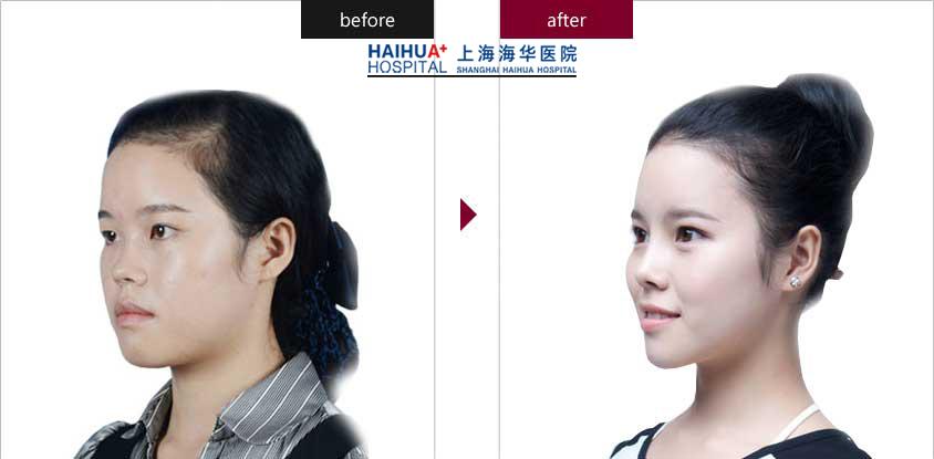 上海海華整形醫院雙眼皮整形